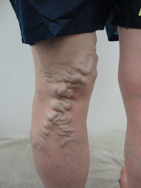 下肢動脈瘤..jpg